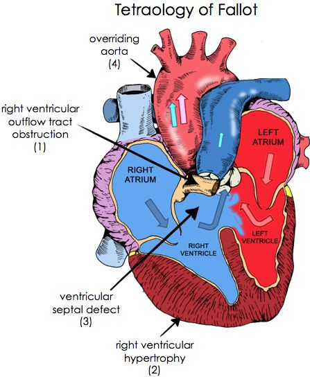 Genetic or environmental factors can cause a hole in your child's heart at birth 1