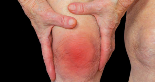 Joint pain, swelling, stiffness and deformity-Arthritis 1